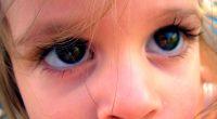 פרכוסי ינקות מתחילים במהלך השנה הראשונה לחיים, לרוב החל מגיל שלושה חודשים עד שמונה חודשים. הפרכוסים מתרחשים מספר פעמים ברציפות, במצב הנקרא מקבץ, והתינוק עשוי לחוות מספר מקבצים ביום. תינוקות […]